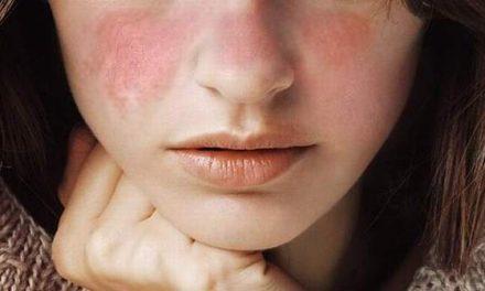 Anda Kenal Lupus?